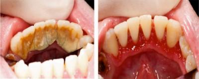 prevention oral hygiene